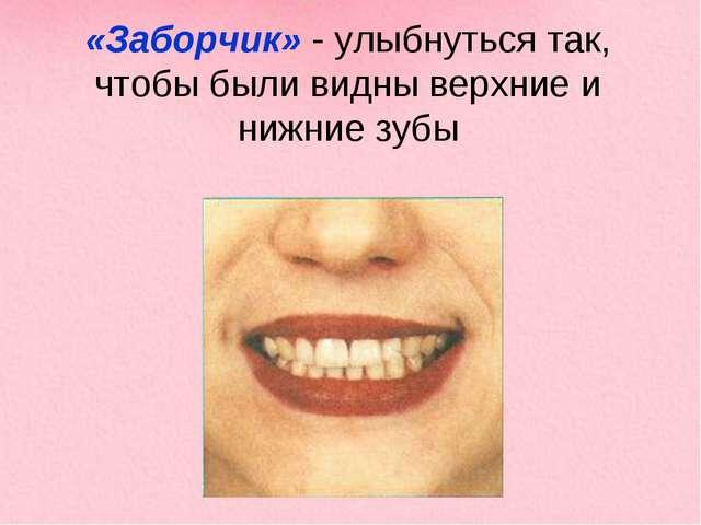 «Заборчик» - улыбнуться так, чтобы были видны верхние и нижние зубы