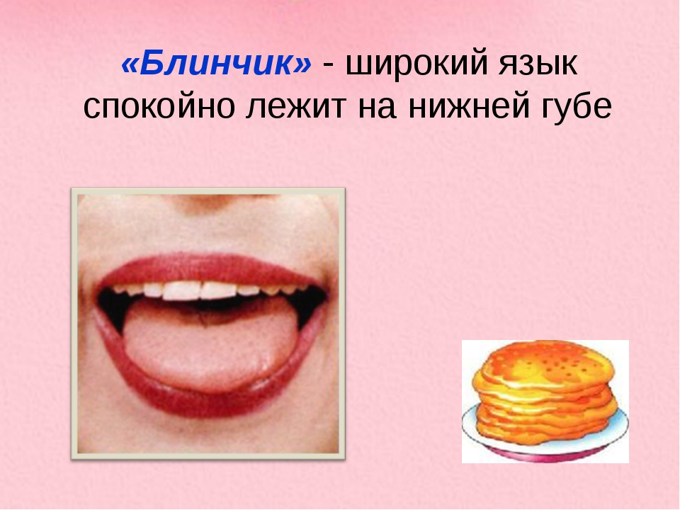 «Блинчик» - широкий язык спокойно лежит на нижней губе