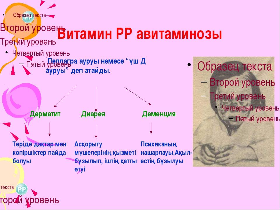 """Витамин РР авитаминозы Пеллагра ауруы немесе """"үш Д ауруы"""" деп атайды. Дермати..."""