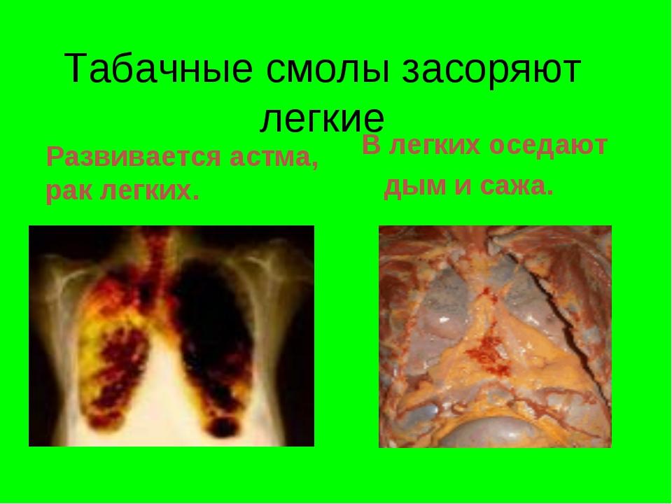 Табачные смолы засоряют легкие Развивается астма, рак легких. В легких оседаю...