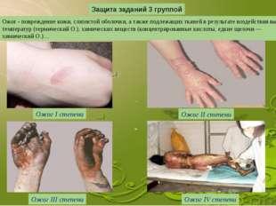 Защита заданий 3 группой Ожог - повреждение кожи, слизистой оболочки, а также