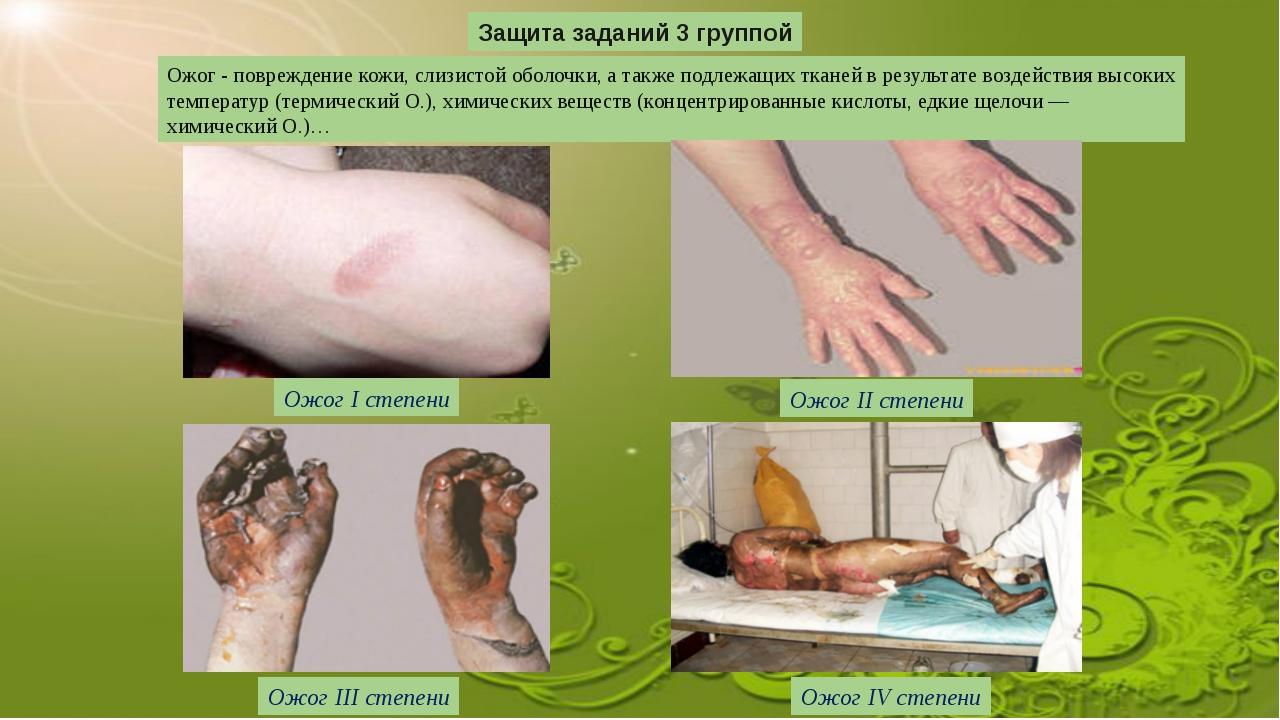 Защита заданий 3 группой Ожог - повреждение кожи, слизистой оболочки, а также...