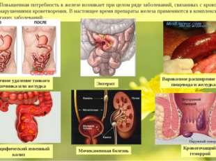 Повышенная потребность в железе возникает при целом ряде заболеваний, связанн