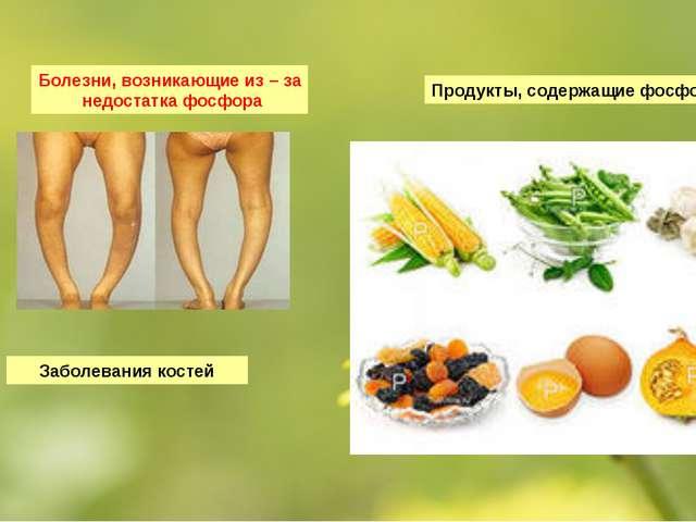 Болезни, возникающие из – за недостатка фосфора Продукты, содержащие фосфор З...