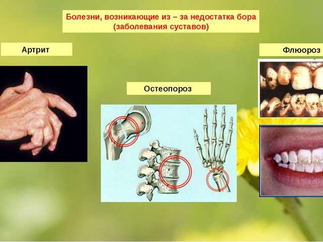 Болезни, возникающие из – за недостатка бора (заболевания суставов) Артрит Фл...