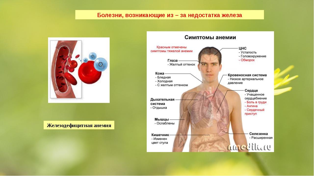 Болезни, возникающие из – за недостатка железа Железодефицитная анемия