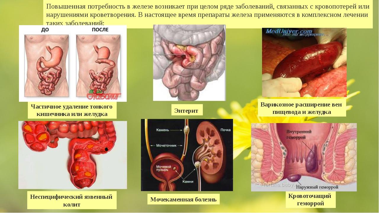 Повышенная потребность в железе возникает при целом ряде заболеваний, связанн...
