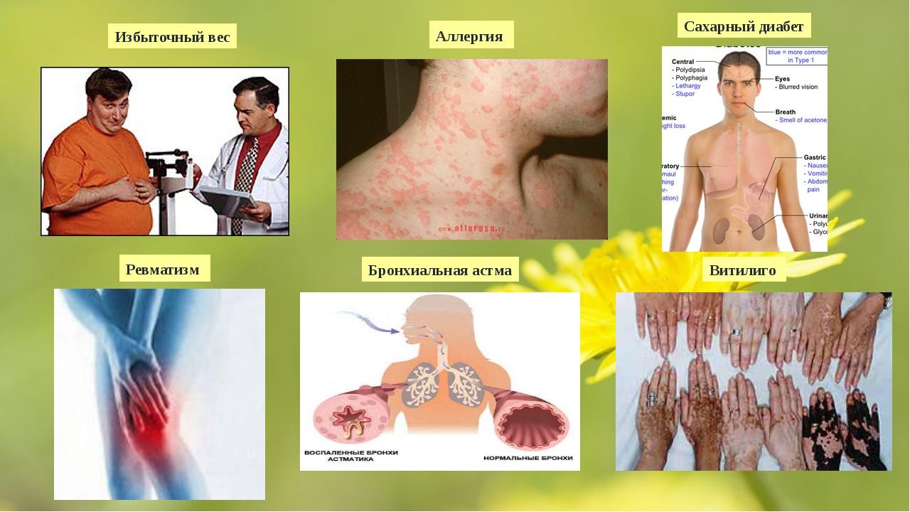 Избыточный вес Аллергия Сахарный диабет Ревматизм Бронхиальная астма Витилиго