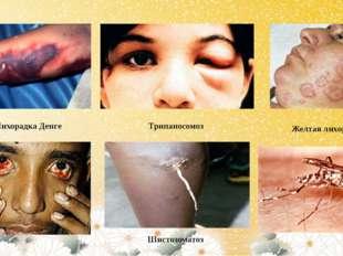 Лихорадка Денге Желтая лихорадка Трипаносомоз Шистозоматоз