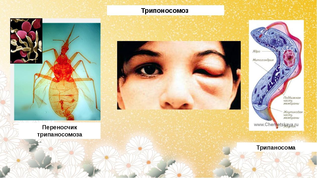 Трипоносомоз Переносчик трипаносомоза Трипаносома