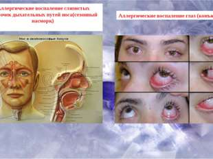 Аллергические воспаление слизистых оболочек дыхательных путей носа(сезонный н