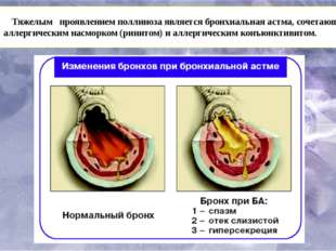 Тяжелым проявлениемполлинозаявляется бронхиальная астма, сочетающаяся с ал
