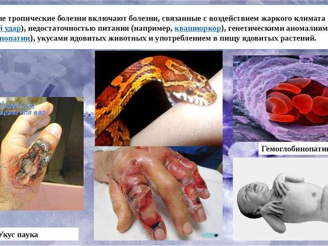 Незаразные тропические болезни включают болезни, связанные с воздействием жа...