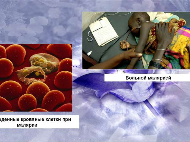 Поврежденные кровяные клетки при малярии Больной малярией