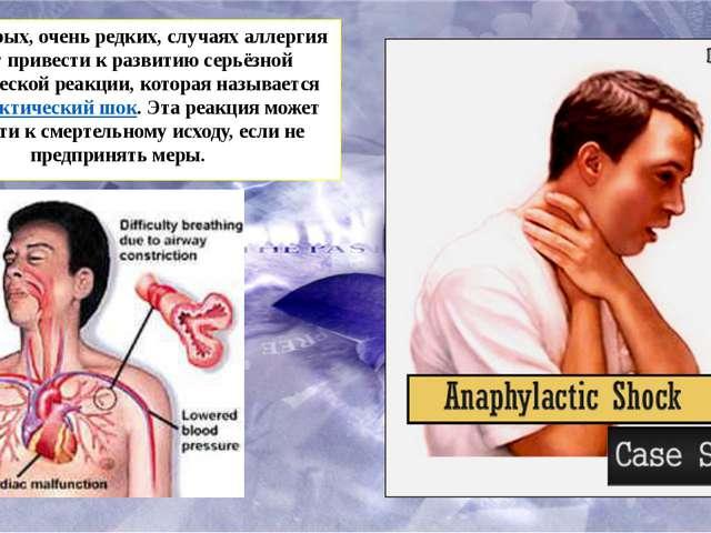 В некоторых, очень редких, случаях аллергия может привести к развитию серьёз...