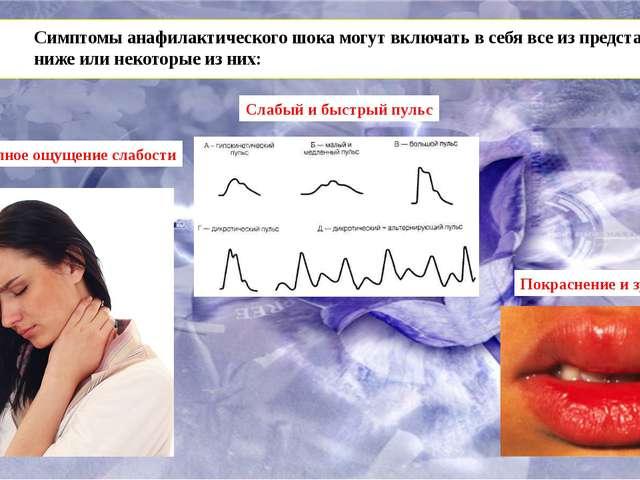 Симптомы анафилактического шока могут включать в себя все из представленных...
