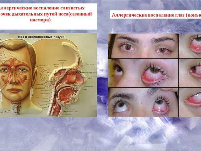 Аллергические воспаление слизистых оболочек дыхательных путей носа(сезонный н...