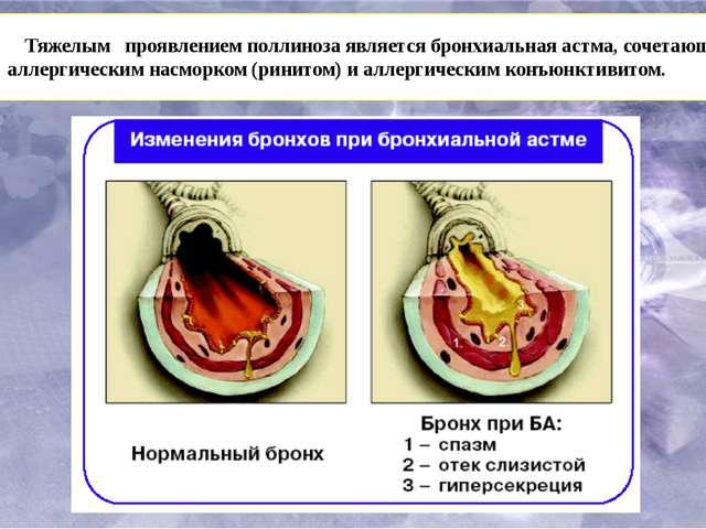 Тяжелым проявлениемполлинозаявляется бронхиальная астма, сочетающаяся с ал...