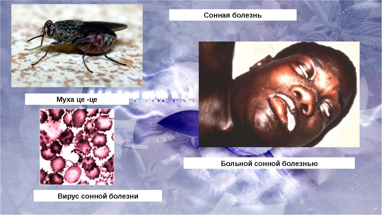 Сонная болезнь Муха це -це Вирус сонной болезни Больной сонной болезнью