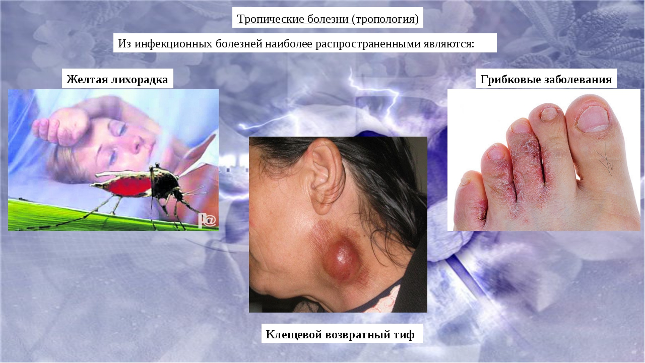 Тропические болезни (тропология) Из инфекционных болезней наиболее распростра...