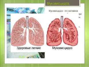 Муковисцидоз. Муковисцидоз - это системное наследственное заболевание, при ко