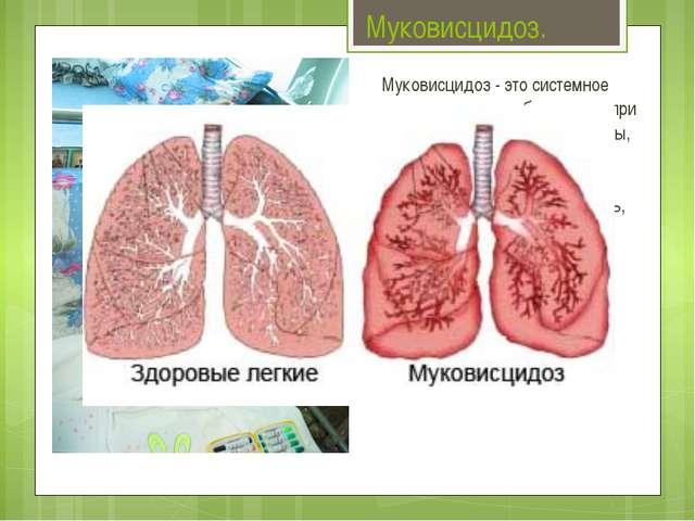 Муковисцидоз. Муковисцидоз - это системное наследственное заболевание, при ко...