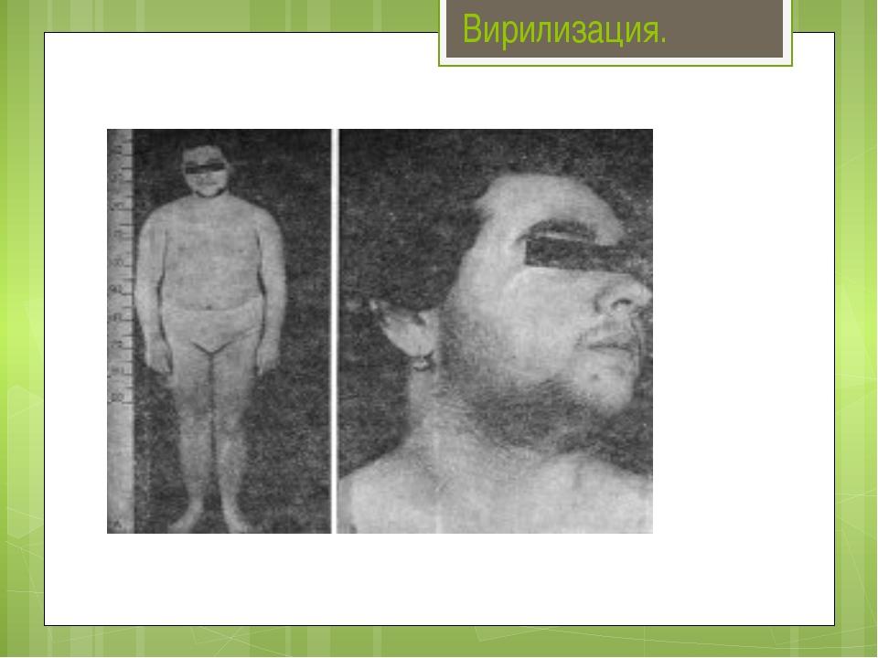 Вирилизация. Вирилиза́ция — симптомокомплекс, характеризующийся появлением му...