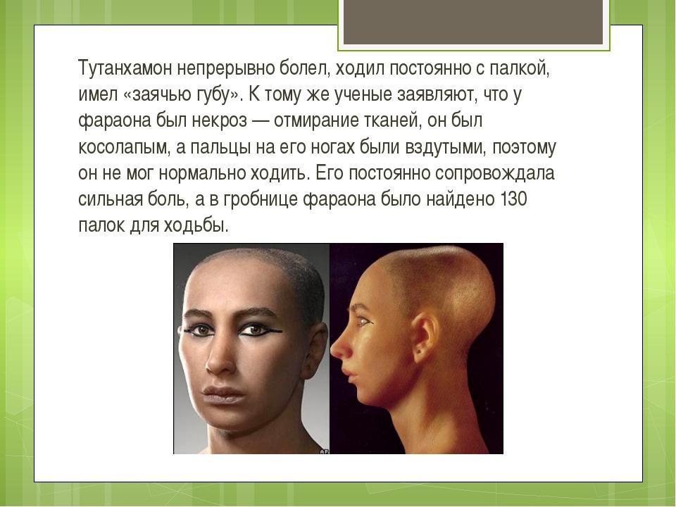 Тутанхамон непрерывно болел, ходил постоянно с палкой, имел «заячью губу». К...