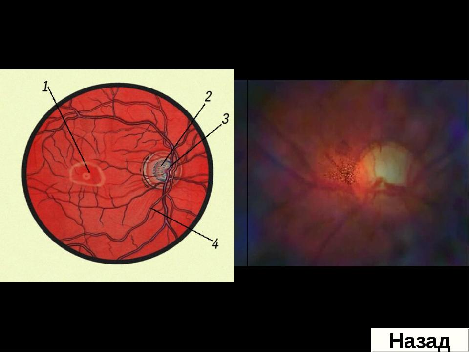 Желтое пятно – расположено против зрачка. В клетках Желтого пятна содержится...