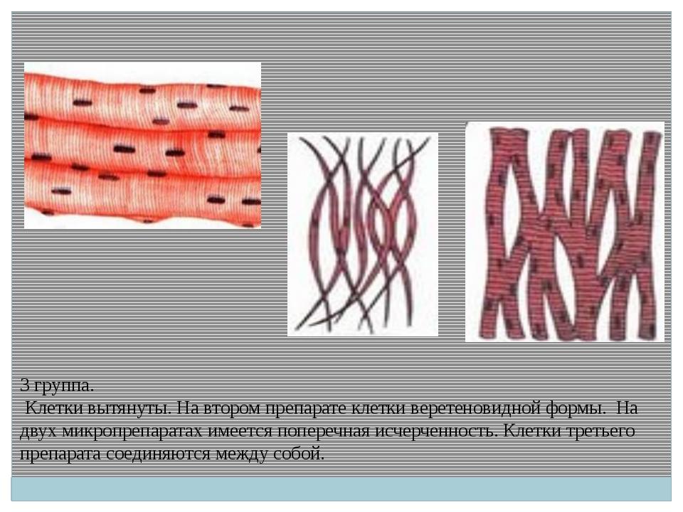 3 группа. Клетки вытянуты. На втором препарате клетки веретеновидной формы. Н...