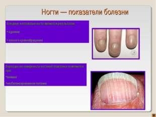 Ногти — показатели болезни Бороздки на поверхности ногтевой пластинки появляю