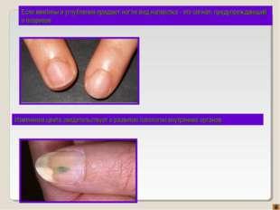 Если вмятины и углубления придают ногтю вид наперстка - это сигнал, предупреж