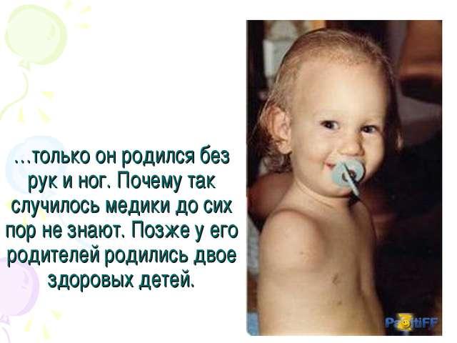 …только он родился без рук и ног. Почему так случилось медики до сих пор не з...