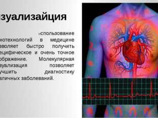 Визуализайция 1. Использование нанотехнологий в медицине позволяет быстро по