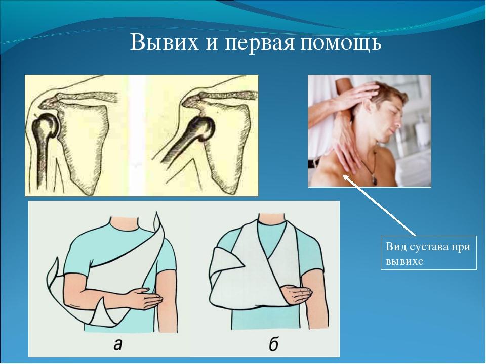 Вывих плечевого сустава лечение в домашних условиях пошагово в
