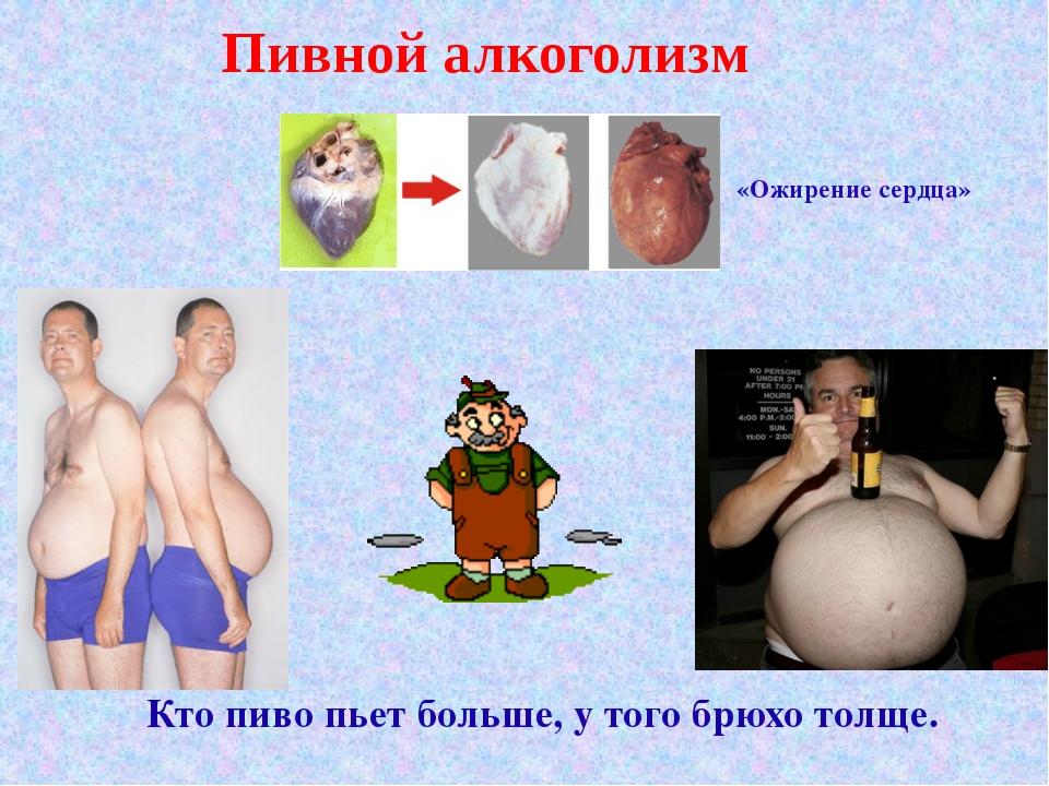 Пивной алкоголизм Кто пиво пьет больше, у того брюхо толще. «Ожирение сердца»