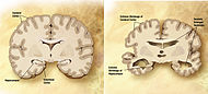 Alzheimer's disease brain comparison.jpg