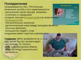 Полидактилия обнаруживается у 60—70% больных. Изменения кистей и стоп характе