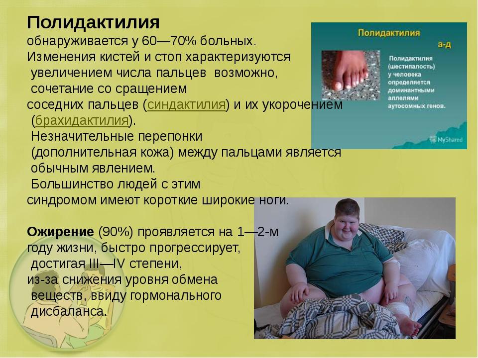 Полидактилия обнаруживается у 60—70% больных. Изменения кистей и стоп характе...
