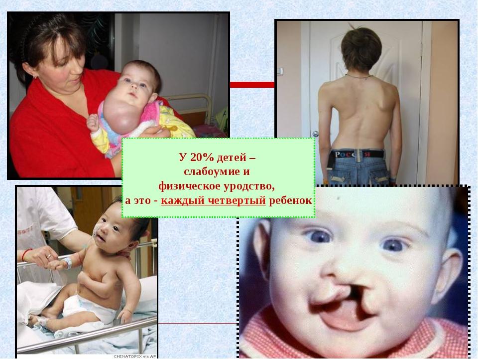 У 20% детей – слабоумие и физическое уродство, а это - каждый четвертый ребенок