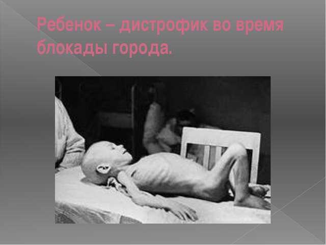 Ребенок – дистрофик во время блокады города.