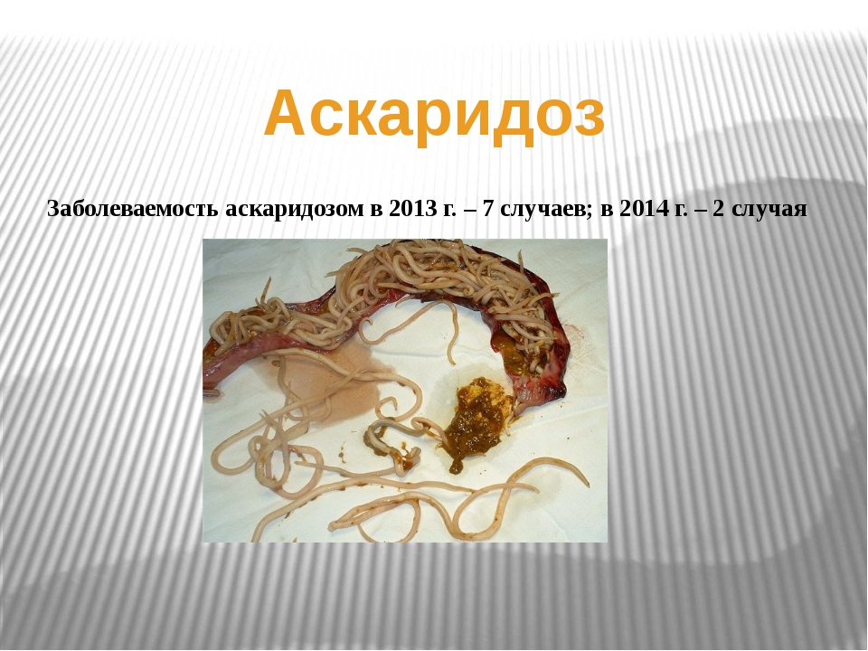 Аскаридоз Заболеваемость аскаридозом в 2013 г. – 7 случаев; в 2014 г. – 2 слу...