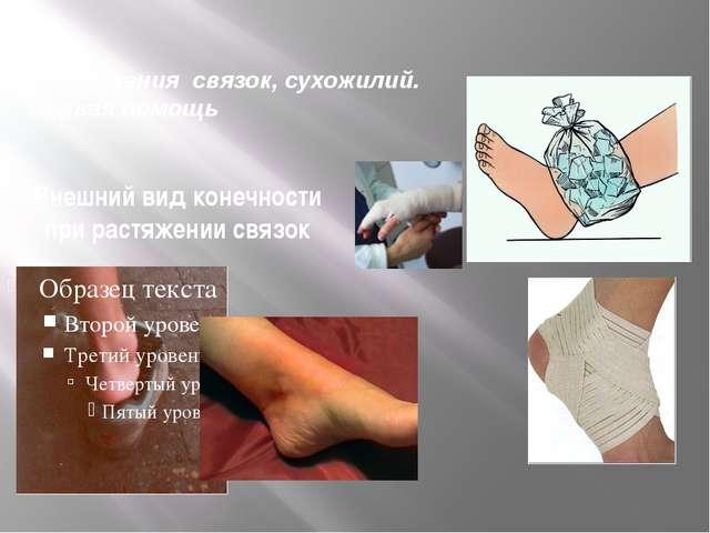 Переломы. Первая помощь Иммобилизация верхней конечности с помощью подручной...