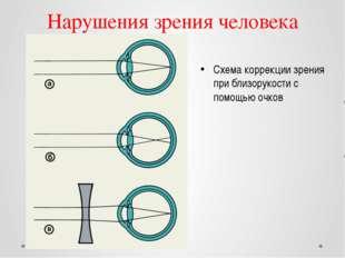 Нарушения зрения человека Схема коррекции зрения при близорукости с помощью о