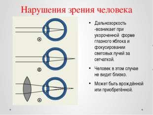 Нарушения зрения человека Дальнозоркость -возникает при укороченной форме гла