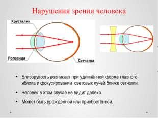 Нарушения зрения человека Близорукость возникает при удлинённой форме глазног