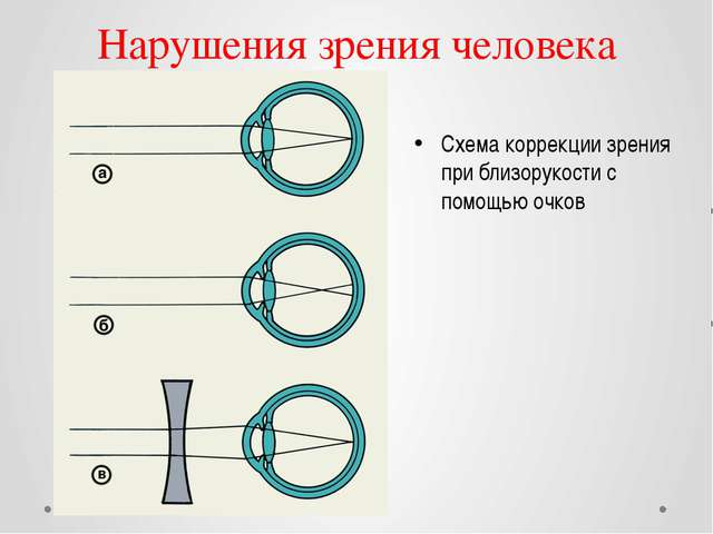 Нарушения зрения человека Схема коррекции зрения при близорукости с помощью о...