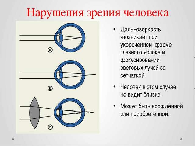 Нарушения зрения человека Дальнозоркость -возникает при укороченной форме гла...
