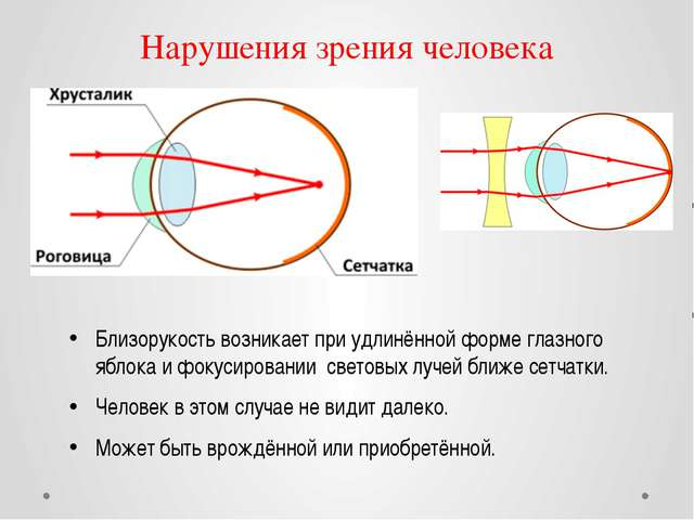 Нарушения зрения человека Близорукость возникает при удлинённой форме глазног...