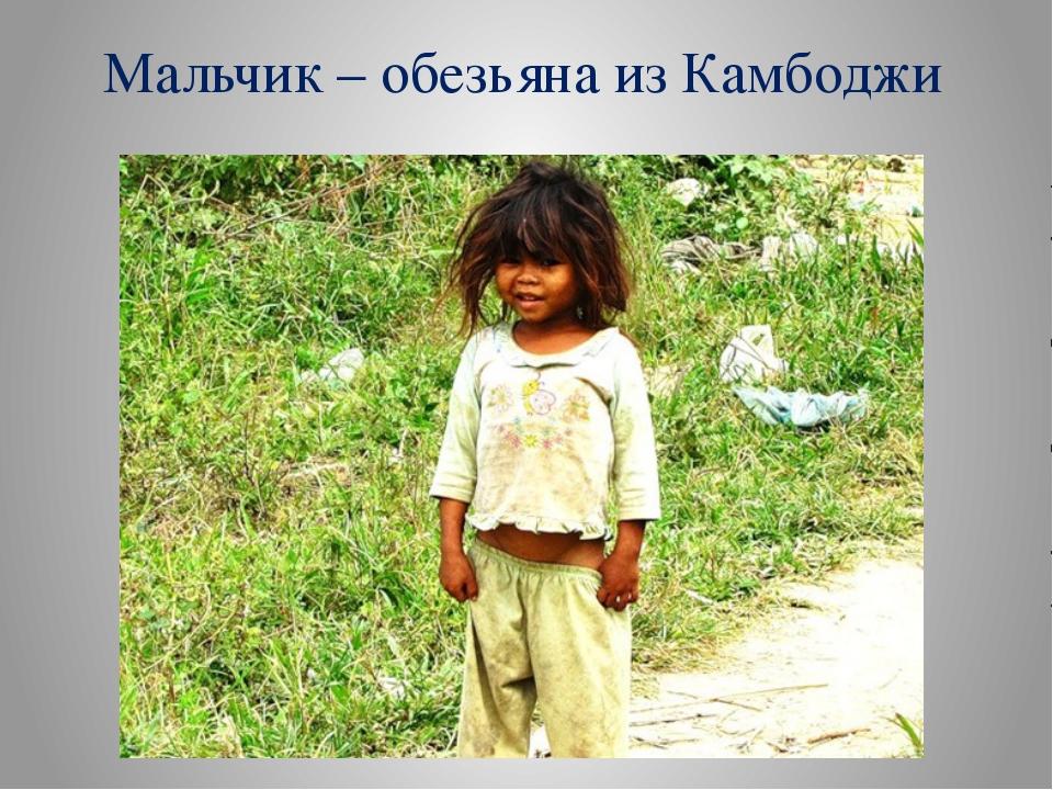 Мальчик – обезьяна из Камбоджи
